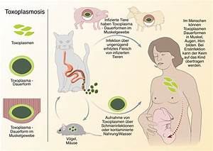 Toxoplasmosis; Toxoplasma gondii Infection