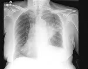Left Upper Lobe Lung Cancer