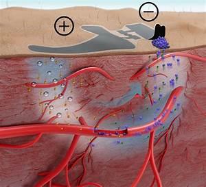 Skin-like Biosensor Offers Needle-free Blood Sugar Monitoring