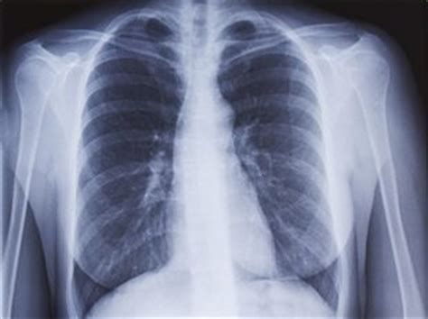 radiographie des poumons examen docteurcliccom