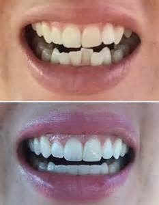 Invisalign Before and After Teeth