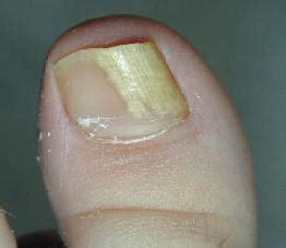 Sosut Paltsi Na Nogah 6830 грибок на пальцах ног чем лечить как вылечить грибок на