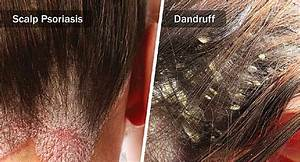 Scalp Psoriasis Vs  Dandruff  How To Tell The Difference
