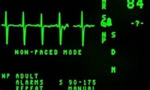 Puls Berechnen 15 Sekunden : pulsschlag welcher wert ist normal und welcher puls gilt als erh ht wie mi t man den puls richtig ~ Themetempest.com Abrechnung