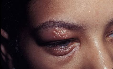 Herpes In The Eye Images Eye Herpes Pictures 14 Photos Images Illnessee