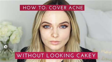 cover acne scars   cakey