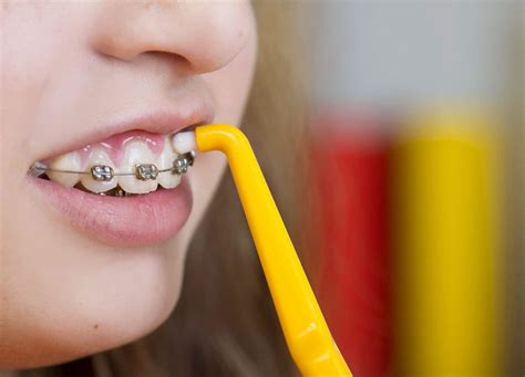 braces  oral hygiene keeping  clean orthodontic