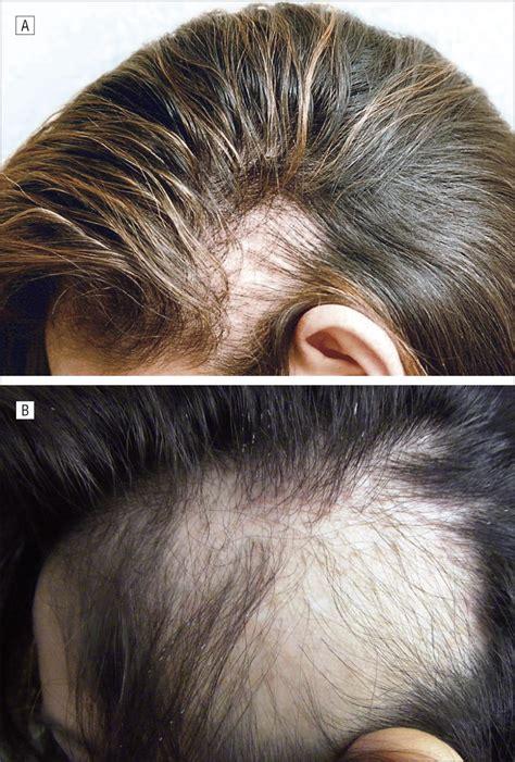 traction alopecia   ballerina clinicopathologic
