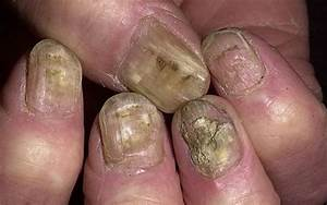 Грибок ногтя на руках как избавиться