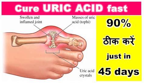 Cure Uric Acid fast