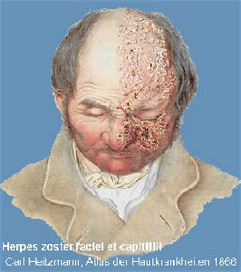 zoster herpes