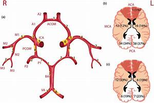 Schematic Drawing Of The Circle Of Willis And Its Branches