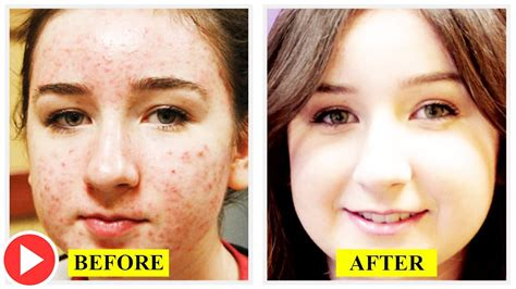 Best Acne Treatments For Teenagers  Home Remedy To Get. L A College International Best First Class. Corporate Training Programs For College Graduates. Employee Time Tracking Excel. Treatment For Diabeties Debt Relief Companies. The Art Institute Of Washington Dc. Barnes Jewish Nursing School. Merchant Credit Card Advance. Accounting Degree Vs Business Administration