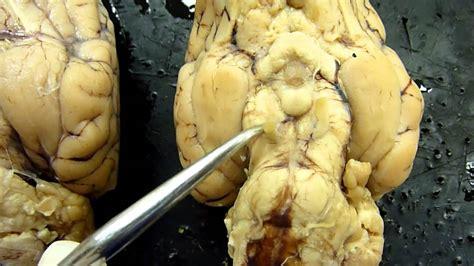 sheep brain anatomy ventral sheep brain ventral view