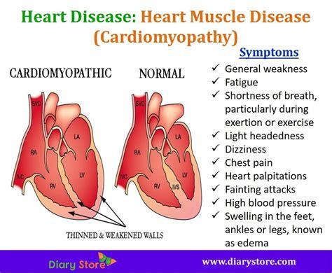 short of breath dizzy light headed light headed nausea heart palpitations mouthtoears com