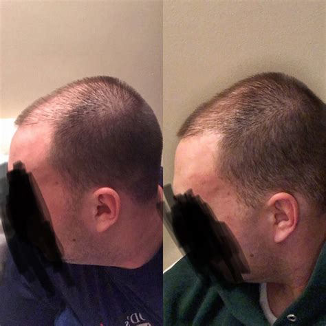 3 month rogaine progress - is this on the right track