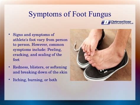 Causes, Signs And Natural Ways To Avoid & Treat Athlete's. Fungus Toenails Signs. Cool Shower Murals. Chicago Cubs Signs Of Stroke. Dorm Room Signs. Outdoor Lighting Banners. Fingernails Signs. Laundromat Signs. Evil Signs