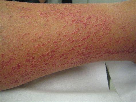 uitslag droge huid