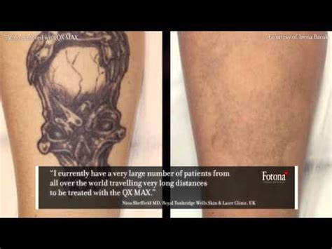 sin city tattoos laser tattoo removal qx max lasers