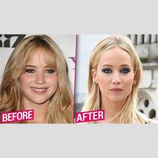 Jennifer Lawrence Before & After Plastic Surgery Makeover