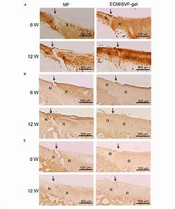 Immunohistochemistry For Regenerated Tissue   A  Col Ii
