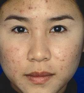 How to remove pimple marks from face fast and naturally ...
