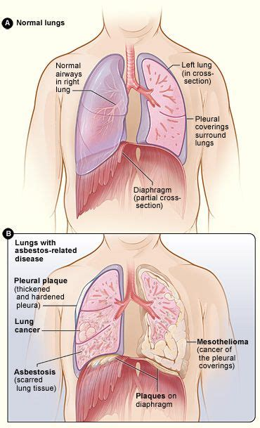figure  shows  location   lungs airways pleura