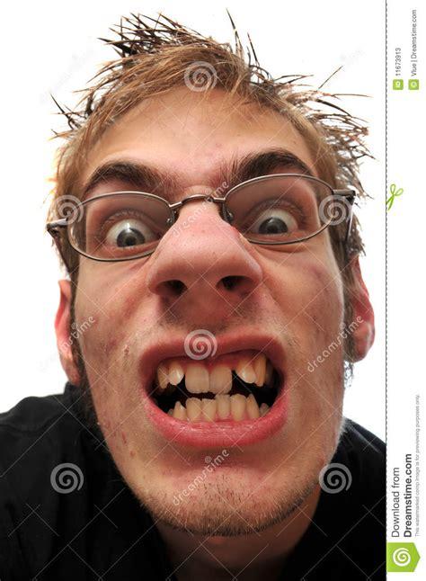 homem feio irritado  dentes curvados  vidros imagem de