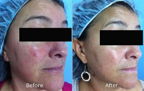HydraFacial MD® Elite in Tulsa, OK | Skin Care Institute