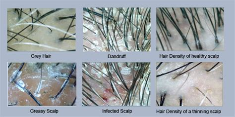spironolactone hair loss before and 96 off 25 for 4 hair regrowth therapies at tk trichokare in 4 locations worth 556 premium