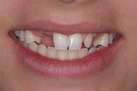 affordable dental care jacksonville fl prosthodontist