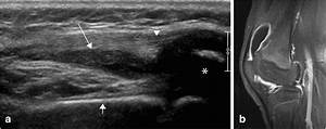 Ultrasound  Panoramic View  Of The Ventral Aspect Of The