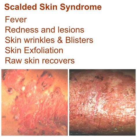 Life Threatening Skin Rash Series Staphylococcal Scalded