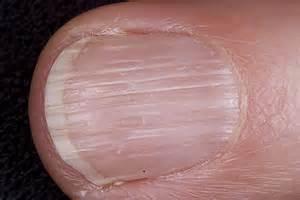 vertical nail ridges thyroid disorders medhelp 2016 car