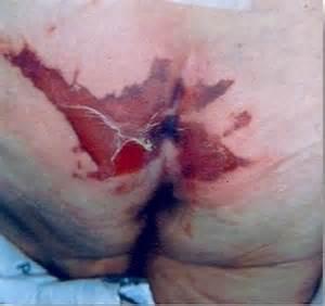 Deep Tissue Injury vs Pressure Ulcer