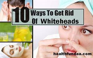 How to Get Rid of Whiteheads: 10 Best Home Remedies ...