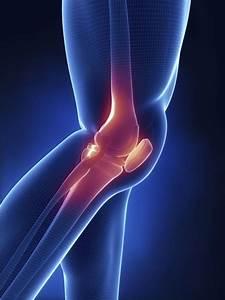 Почему болит сустав бедра что делать