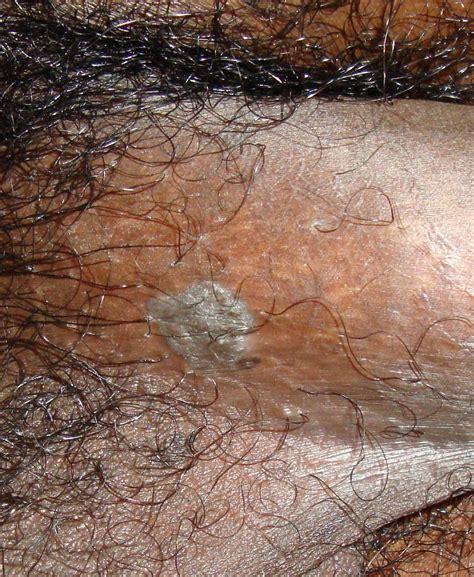 condyloma acuminatum genital warts  clinical advisor