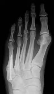 Fracture of 5th Metatarsal Bone