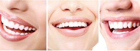 thuis tanden bleken met bleekstrips bleekpennen en bleekgels