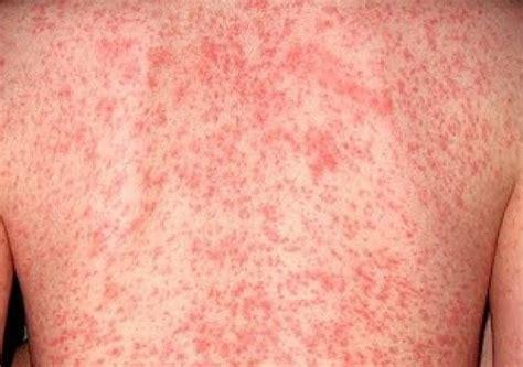 hautallergie symptome mit bildern zum hautausschlag