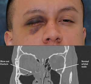 orbital blow out fracture orbital wall fracture facial