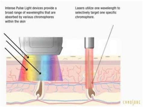IPL Hair Removal vs Laser Hair Removal - Which is better