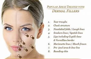Facelift With Injectable Fillers