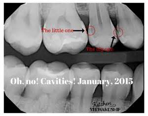 Dental X-rays with Cavities