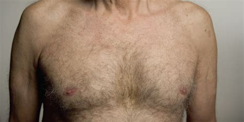 6 Things Men Affected By Breast Cancer Want You To Know