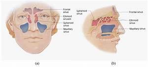 Biophysical Effects On Chronic Rhinosinusitis Bacterial