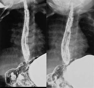 Candida Esophagitis Images  Diagnosis  Treatment Options