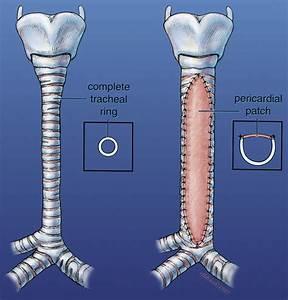 Vascular Rings  Tracheoplasty  And Pulmonary Artery Sling