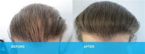 female hair loss treatment gold coast brisbane medici